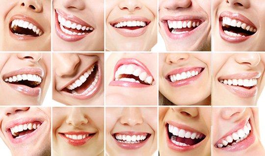 Zahnästhetik - lachende Münder mit schönen Zähnen