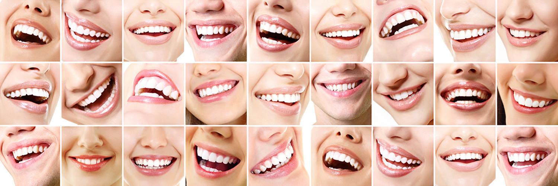 Zahnästhetik - 27 lachende Münder mit schönen Zähnen