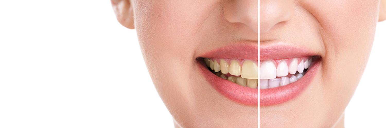 Zahnbleaching – Vorher-Nachher Beispiel