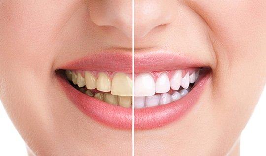 Zahnbleaching - Vorher-Nachher-Portrait