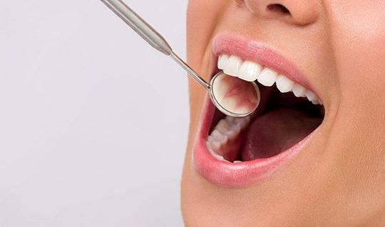Zahnfüllung