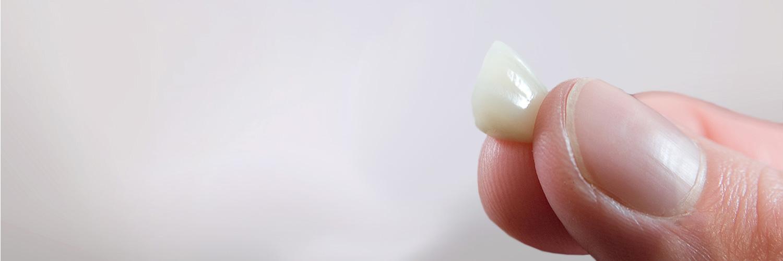 Keramik für den Zahn - so sieht es aus