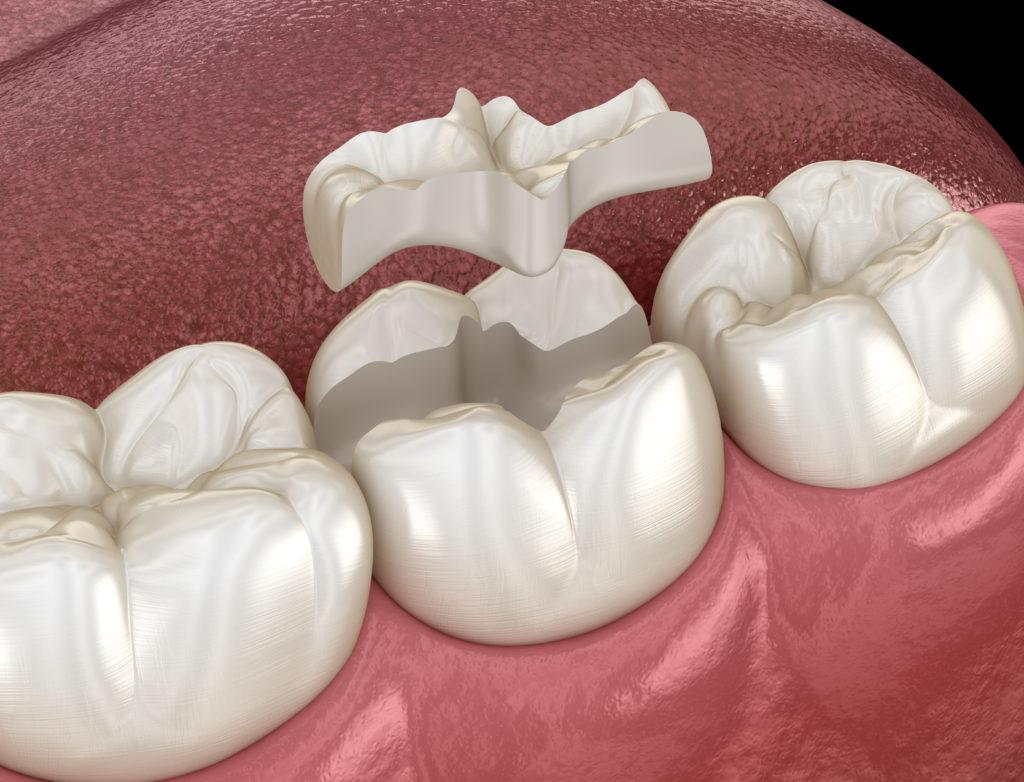 Medizinische 3D Illustration eines Zahn-Inlays aus Keramik.