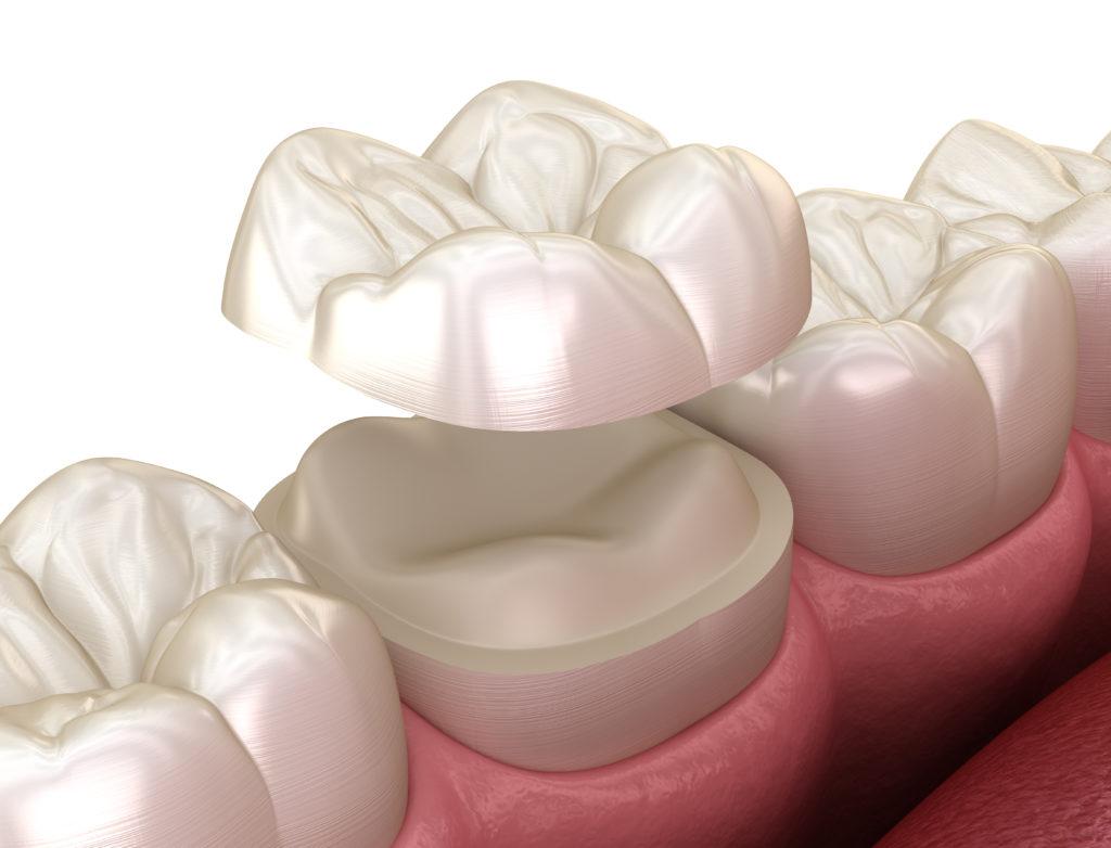 Medizinisch korrekte 3D Illustration eines Zahn Onlays aus Keramik.