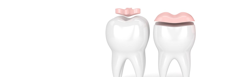 Zahnmedizinisch korrekte Illustration von Inlays und Onlays