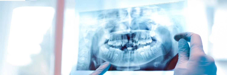 Digitale Zahn-Röntgenaufnahme