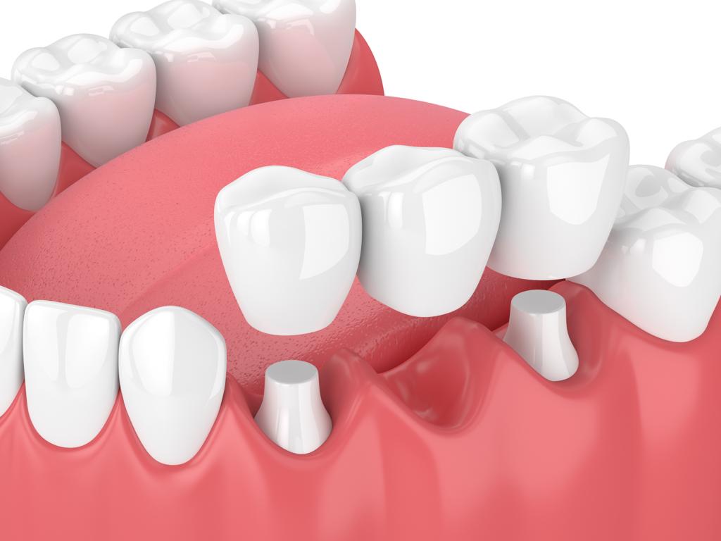 3D Rendering einer Zahnbrücke
